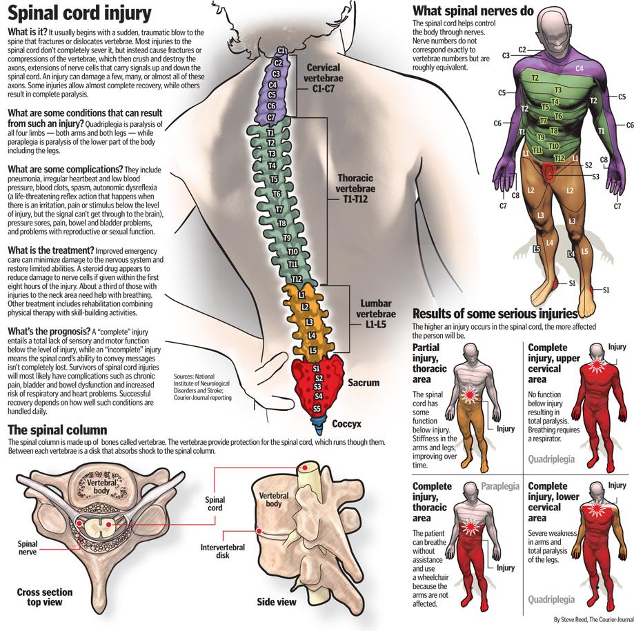 spinal cord injury patientsa - 738×735